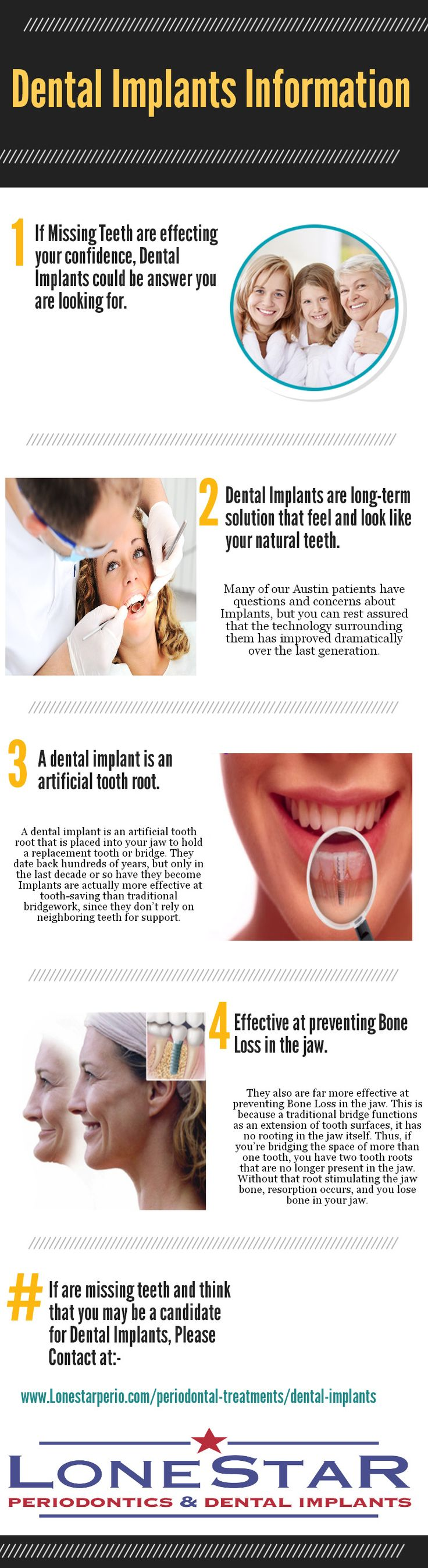 Austin Dental Implants for your better dental care!   #DentalImplants #Smile #Teeth #Care