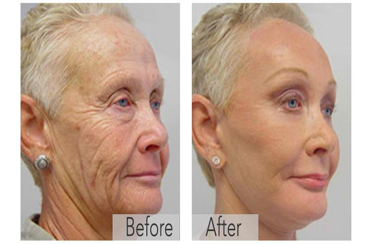 Natural Treatment For Wrinkles Dr Oz