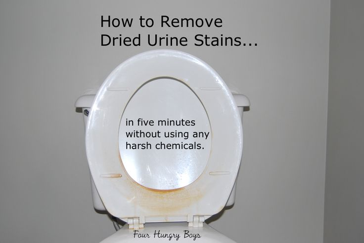 How To Remove Dried Urine From A Toilet Seat