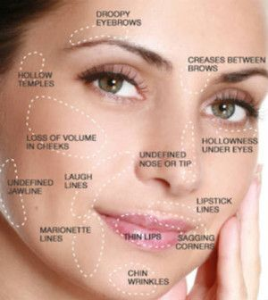 Cheek Fillers Neglect the imitations and do not go with the stream decide on the Orginal and Real Natural Collagen Products