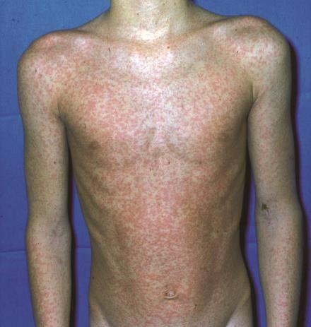 Blickdiagnostik: Infektionskrankheiten - Sternenhimmel und Schmetterlinge - Klinik - Via medici