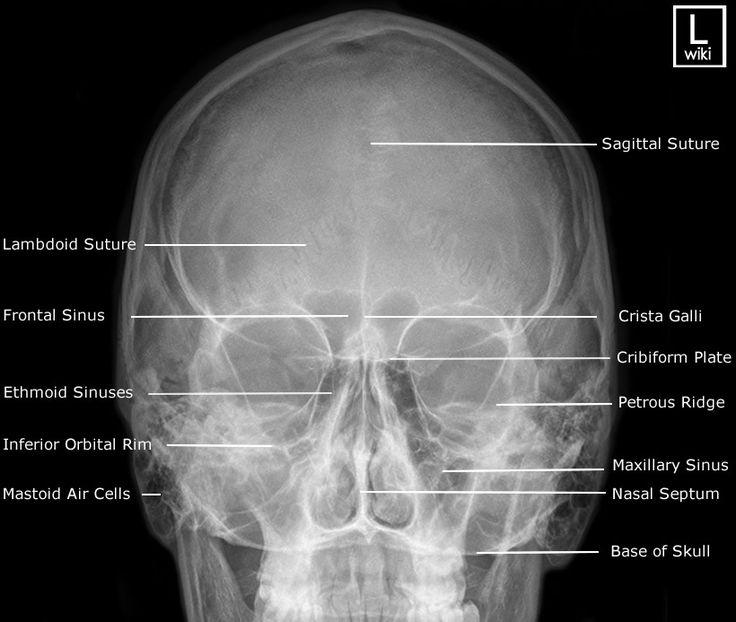 Radiographic Anatomy - PA Caldwell Facial Bones