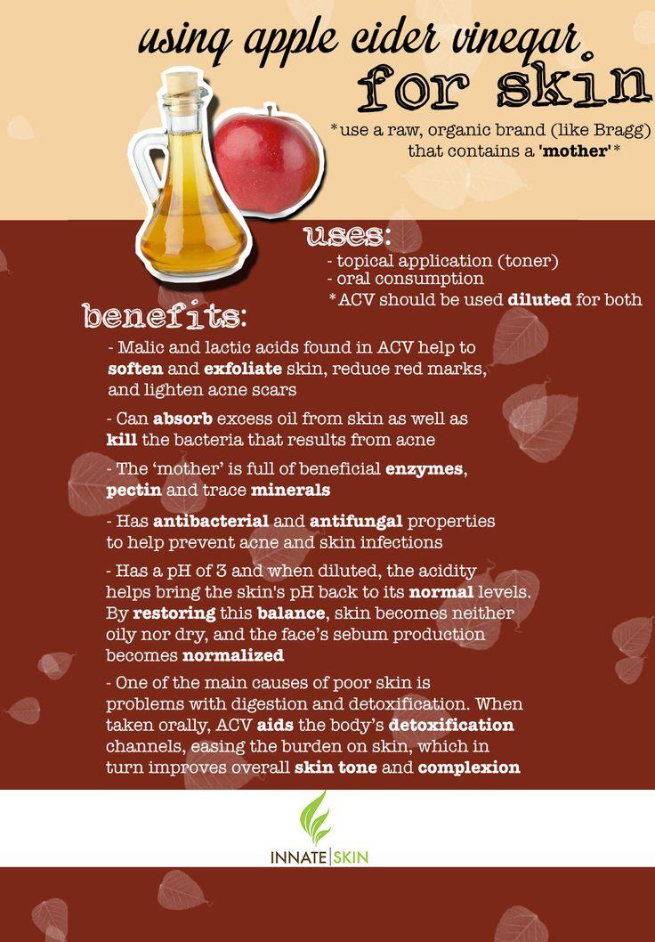 Benefits of using apple cider vinegar for skin acne
