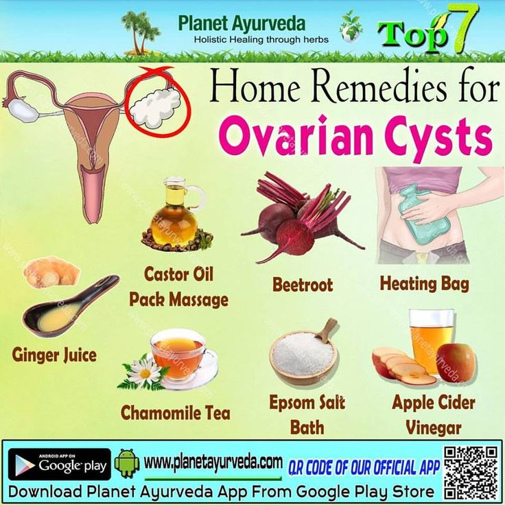 Ovarian cysts formed as a result of menstrual cycle. Most of cysts are painless and symptoms are observed during routine pelvic examination. Ovaries normally form the cyst like structures called functional cysts.