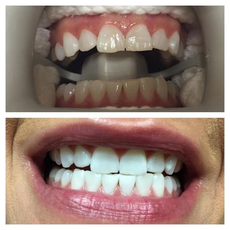 14 best zoom teeth whitening images on pinterest zoom teeth