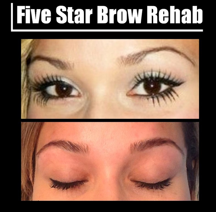 Five Star Brow Rehab - If you have sparse eyebrows due to over-waxing or tweezing; we can help you. This procedure will determine and design your perfect brow shape, and treat your brows with Eyebrow Growth Serum to get the natural, thick brows you deserve.
