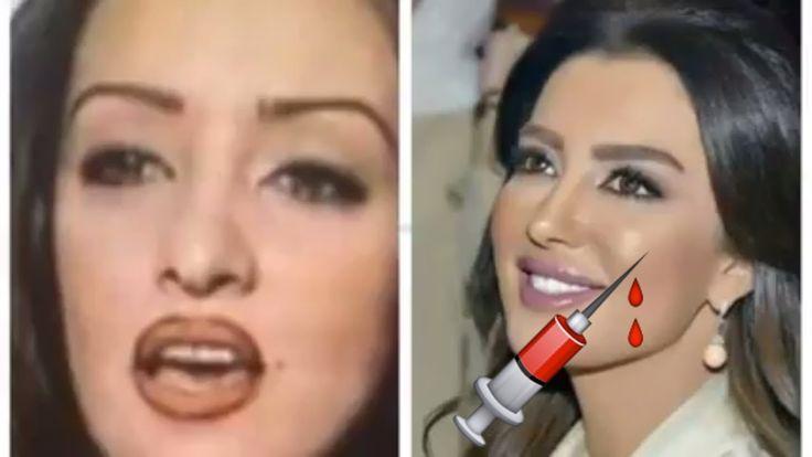 لن تصد قي كيف تغيرت ملامح النجمات المغربيات بعد التجميل Stuff To Buy