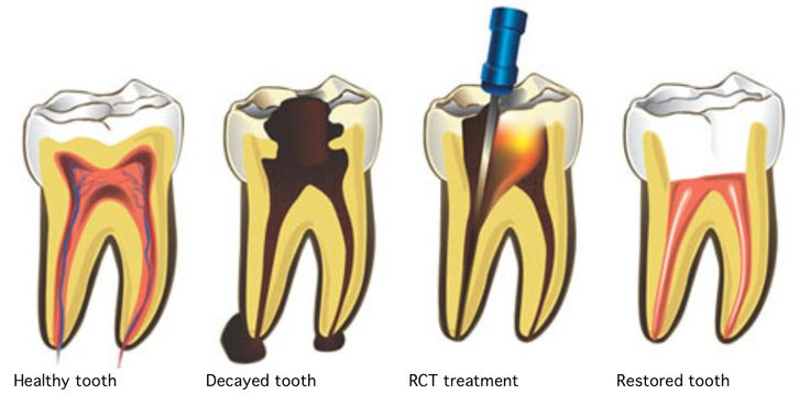 Do you know how Root Canal Treatment is effective? Today, we will discuss about the necessity of Root Canal treatment.