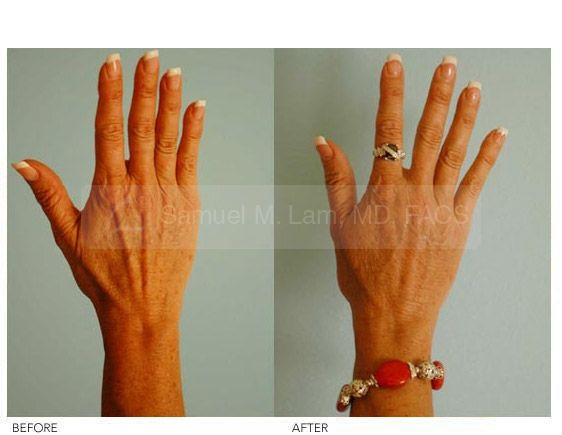 Hand Rejuvenation - Hand Rejuvenation With Fat Grafting. Hand Fat Grafting Procedure By Dr Samuel Lam @Lamfacialplastics #Lamfacialplastics #Drsamlam #Plasticsurgery #Handfatgrafting #Handfattransfer