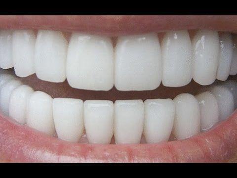 Come sbiancare i denti a casa in modo naturale in soli 3 minuti (Video).
