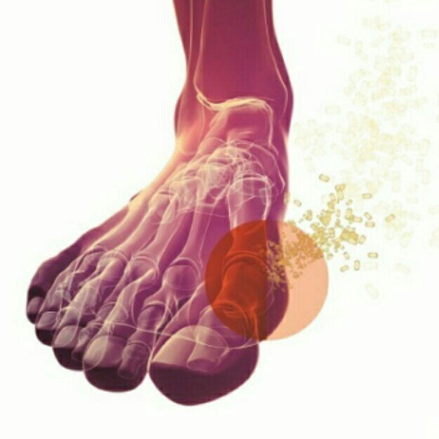 Gout: Swipe for more info Naturopathy we view gout..excess Uric Acid build up