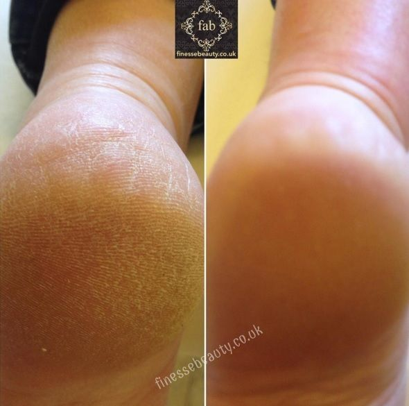 Footlogix Results - available at Louella Belle #Footlogix #Feet #Pedicure #Spa #Salon #Treatment #LouellaBelle