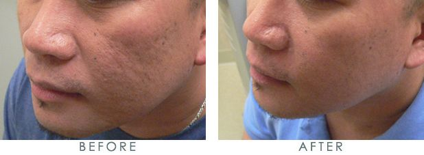 Before and after acne scar laser removal  http://www.laserscarremovalhq.com/