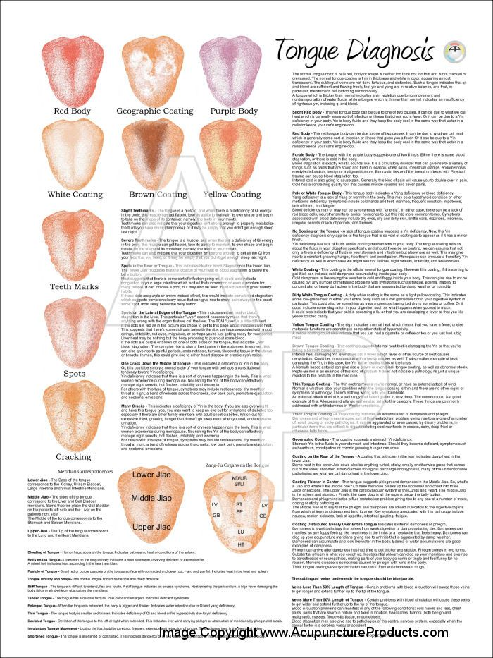 Chinese Tongue Diagnosis Acupuncture Laminated Chart