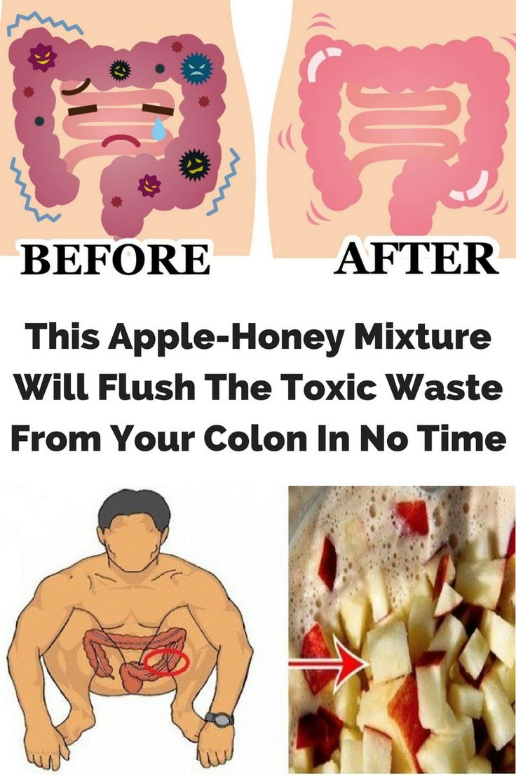The detoxification of the colon has been practiced since ancient Greece. There are several beneficia...