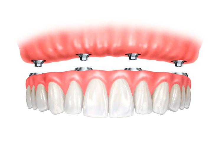 The All-on-4 dental implants solution owes its name to the very nature of the method, which consists of applying a #dental_prosthesis with at least twelve teeth (#bridge) fixed in the jaw, based only on four #titanium_implants. Contact Cosmodent #India at 9999354118 (#Delhi), 8867208923 (#Bangalore), 8588097530 (#Gurugram) or write your queries at info@cosmodentindia.com #Dentist #dentistry_services #International #patients #implants #dental_clinic