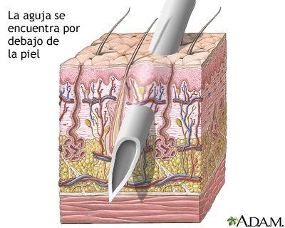 11 best Sistema Tegumentario/ Piel images on Pinterest   Medicina ...