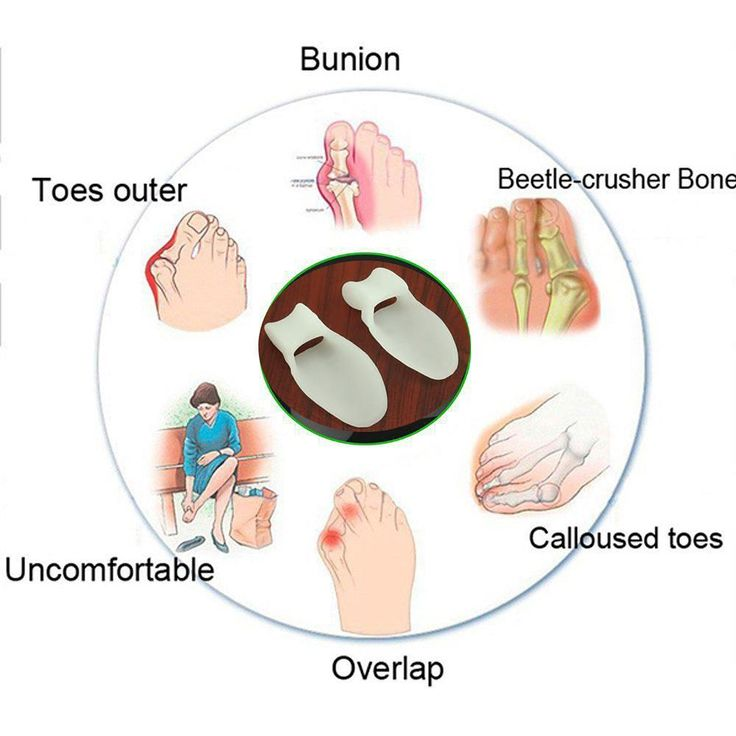 Silicone Gel Toe Separator Bunion Splint Overlapping Spreader Protection Corrector Massager 2pcs/set Silicone Gel Toe Separator Bunion Splint Overlapping Spreader Protection Corrector Massager 2pcs/set