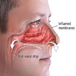 Effective Herbal Remedy For Post Nasal Drip
