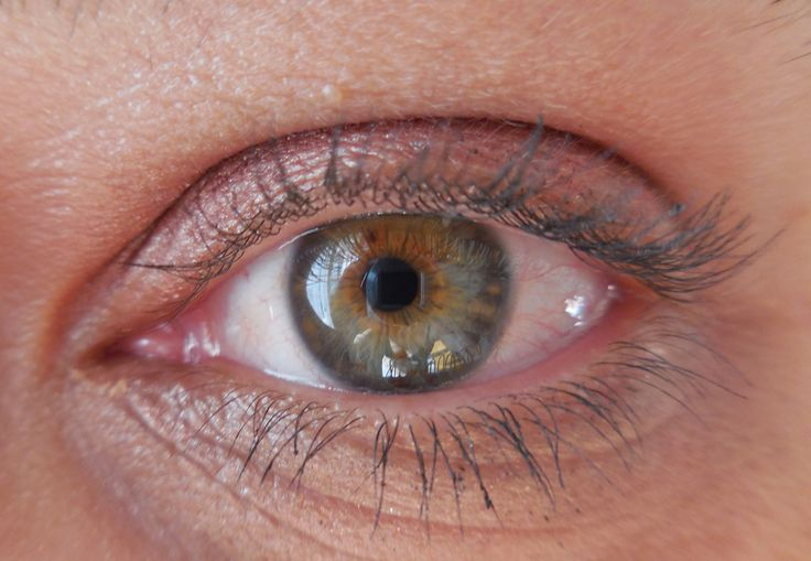 Anita - left eye