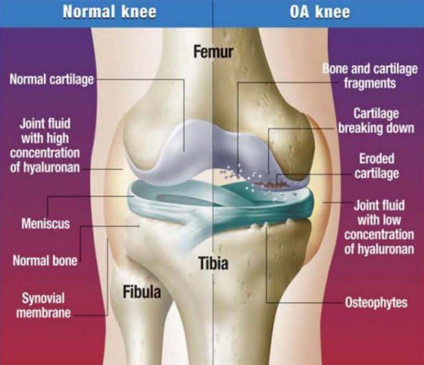 Features Of Osteoarthritis