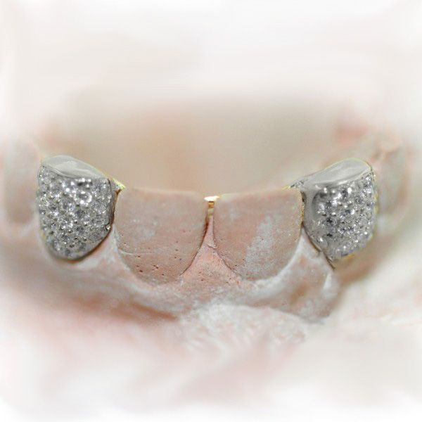 13 best images about teeth on pinterest prong set gold for Highline custom jewelry ig