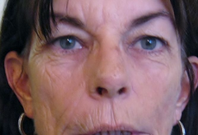 HOld a card over one side of face and then other--amazing!  This gal had most results at first on lips .  As she has used it, her whole face has softened! Call Lee at 1-888-657-5402