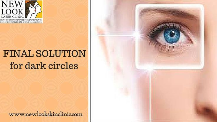 Most of the women develop ‪‎dark‬ ‪‎circles‬ under their eyes. Some of the most common causes of dark circles are pigmentation under the eyes. This is attributed to genetic traits too.
