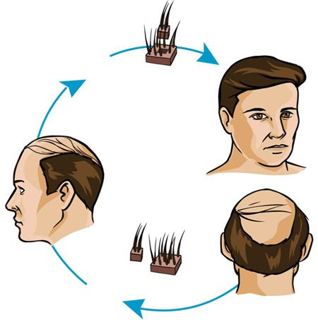 Top 10 Hair Transplantation Centers In Chandigarh