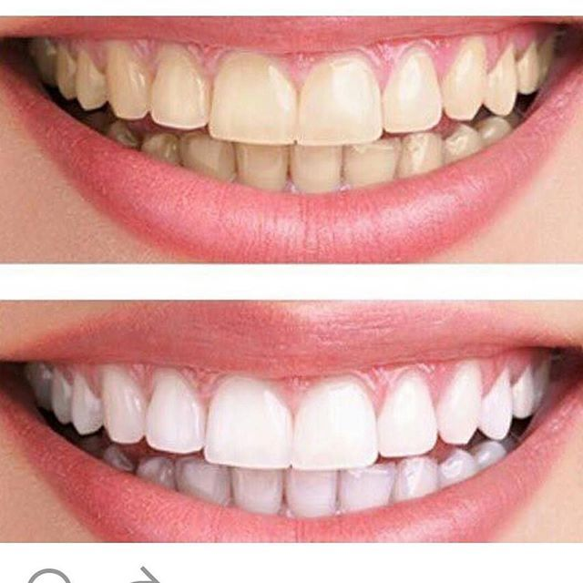 Featured Tooth Whotening Results By @downey.zakdental ・・・ How about a Brighter Smile? CALL TODAY!!! #whitening #smile #whitesmile #specialdeal