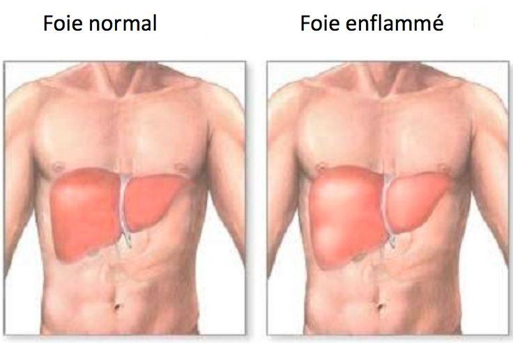 Foie enflammé : symptômes et diète adéquate http://amelioretasante.com/foie-enflamme-symptomes-et-diete-adequate/