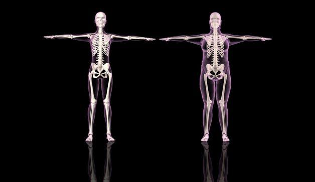 Tratamientos novedosos y de última tecnologia en Osteosarcopenia. Clínica de Artrosis y Osteoporosis www.clinicaartrosis.com; es una entidad privada en la ciudad de Bogotá D.C, Colombia. PBX: 571- 6923370; 571-6837538, 571-6009349, Móvil +57 314-2448344, 300-2597226, 311-2048006, 317-5905407. Opciones terapéuticas eficaces sin cirugías en sujetos ancianos, jóvenes, deportistas, artrosis, osteoporosis, condromalacia, osteopenia, artríticos reumatoideos, osteoartriticos, entre otros.