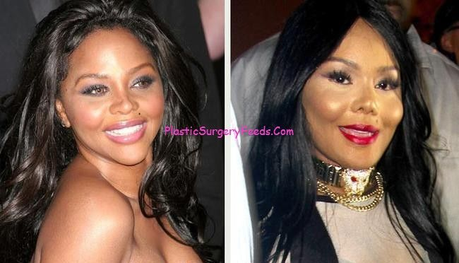 Lil Kim Plastic Surgery Before And After Nose And Lip