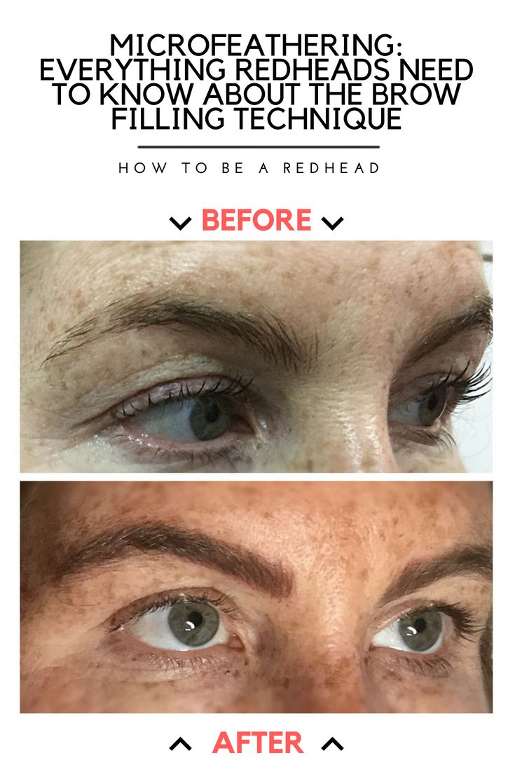Microfeathering Everything Redheads Need To Know About The Brow
