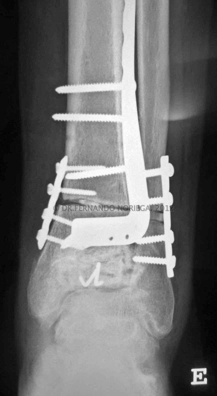 Especialista en cirugía reconstructiva de tobillo, pie y parálisis cerebral