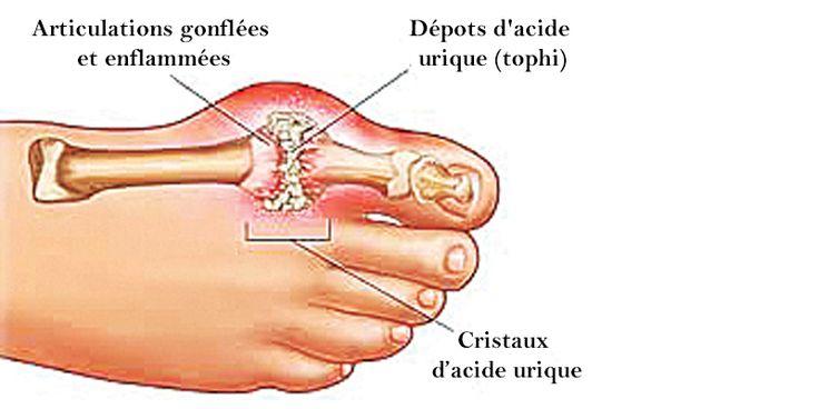 Comment prévenir acide urique