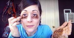 Injeção hyaluronic ácido abaixo de olhos de dobras