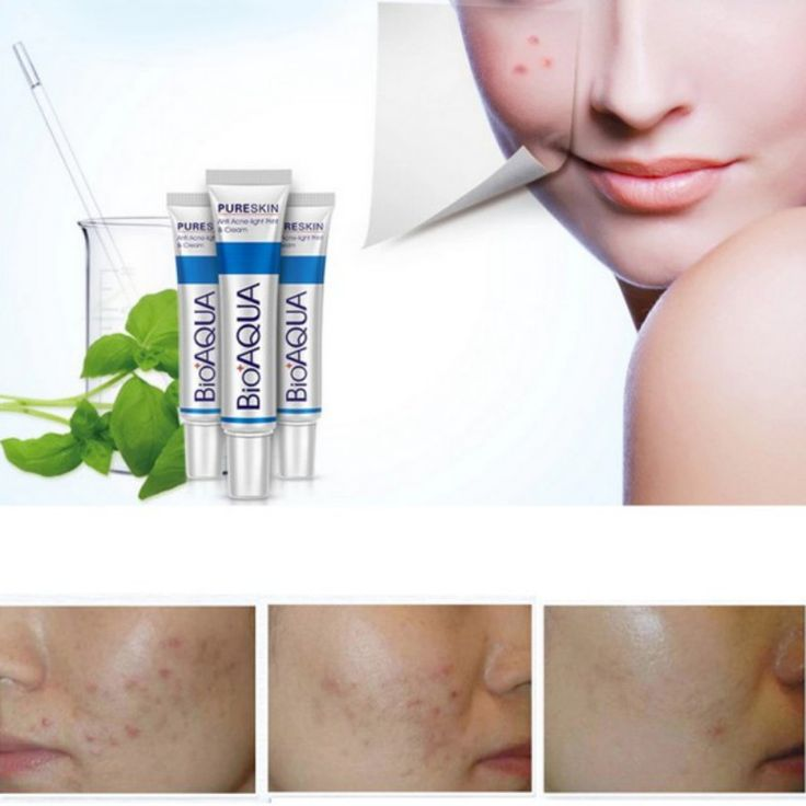 Marcas de Acné retiro de La Cicatriz Crema de Tratamiento Cuidado Facial Hidratante Para Blanquear