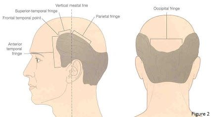 #Hair #Transplant is a surgical technique if you want to Overseas hair transplant then first should concern to doctor. Dr.Krishna Priya helps you to provide complete information about hair transplantation before surgery. To get personal assistance reach us at: info@radiancehairtransplant.com or call us at: 1800-3070-8122.