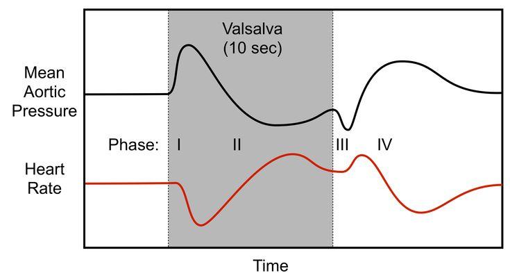 hemodynamics of a Valsalva maneuver
