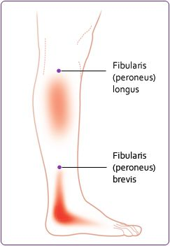 17 best ideas about Peroneus Longus on Pinterest | Trigger ...