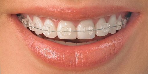 Doncaster Orthodontics is one of the dental specialties which targets to prevent, detect and treat any dental irregularities, which can be malocclusions. Doncaster Hill dental is the best option for you; we offer best quality orthodontics services to our patients. Call (03) 9840 2963 or send your inquiries on: info@doncasterhilldental.com.au to book your appointment today.