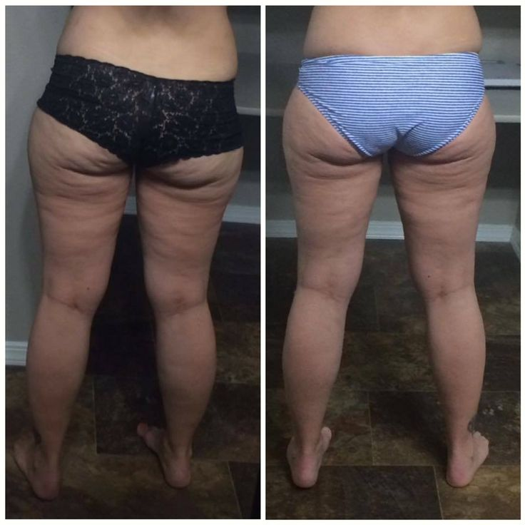 "You might be surprised to hear that, while #cellulite has been referred to as a ""fat problem"", recent science has helped us pinpoint that the real cause is distorted #fascia! Fascial adhesions pull down on the skin causing the dents and dimples we call ""cellulite"" which can be smoothed out with the help of the #FasciaBlaster."