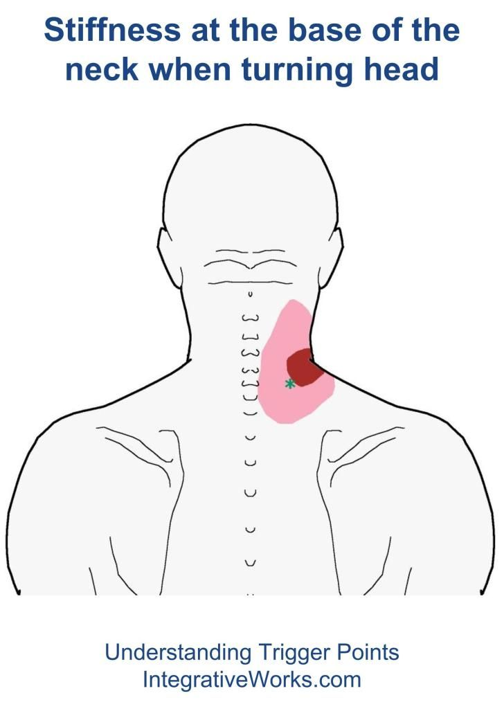 Pin On Neck Pain Relief