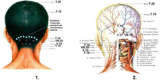Рисунок 14 – 1,2. Болевые точки на затылке при радикулите. Иннервация затылочного отдела головы.