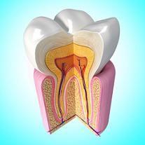 les 25 meilleures id es concernant dent de sagesse sur pinterest douleur arrachage dents de. Black Bedroom Furniture Sets. Home Design Ideas