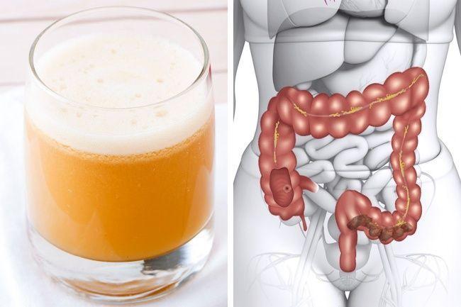 10 alimentos saludables diarios que naturalmente desintoxican y limpian tu cuerpo   – Egészségtár