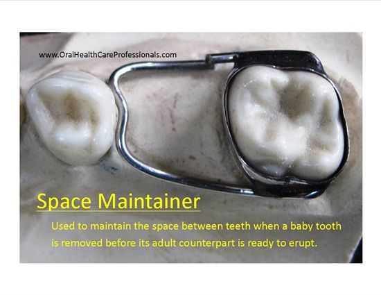 Dentaltown - A space maintainer is a device cemented to one tooth with an arm that spans a space and contacts a tooth on the other side of the span. It is typically used when a baby tooth is removed/extracted before its adult counterpart is ready to erupt. Space maintainers are typically only used for the posterior teeth. They are essential to prevent drifting and crowding of the teeth. This undesirable tooth movement may require complicated orthodontics to correct. Prevention is the key.
