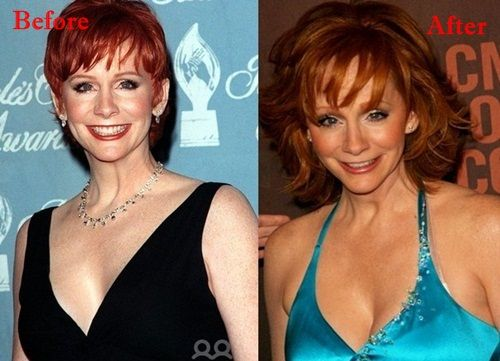 Reba Mcentire Plastic Surgery Before And After Plastic