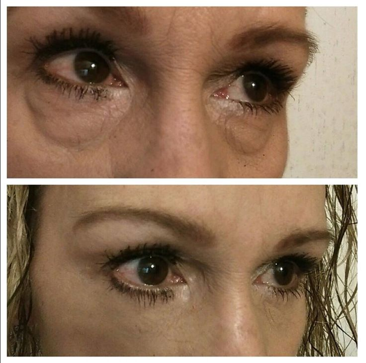 They say a picture speaks a thousand words... what do these say to you?!? And what if I told you these before and after pictures are just TWO MINUTES apart? What are your thoughts? SHOCKING ISN'T IT!!! www.instantlyshocking.com